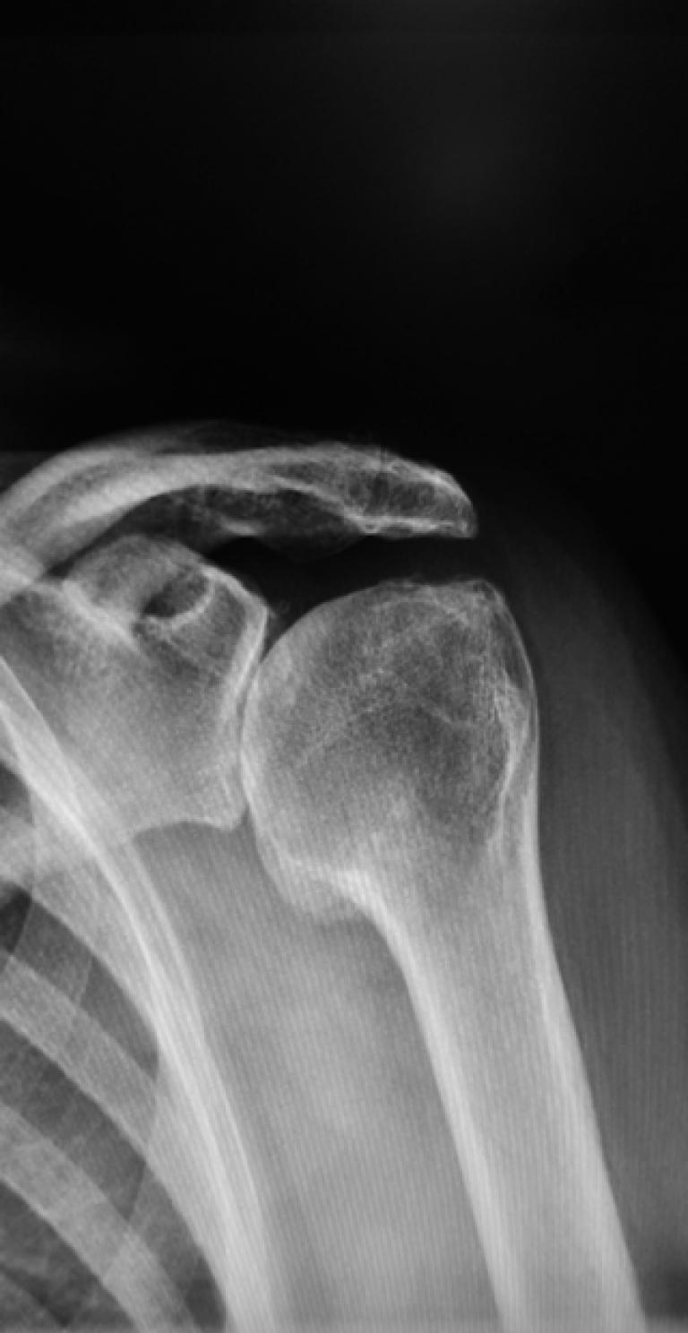 Schulterschmerzen: Omarthrose - Ausg. 9